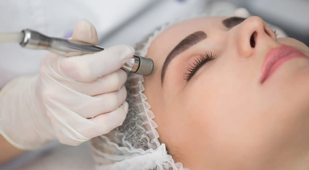 What is Microdermabrasion treatment?